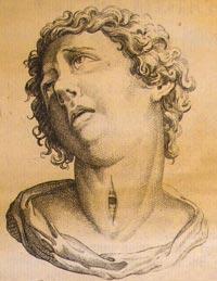 History of tracheostomy