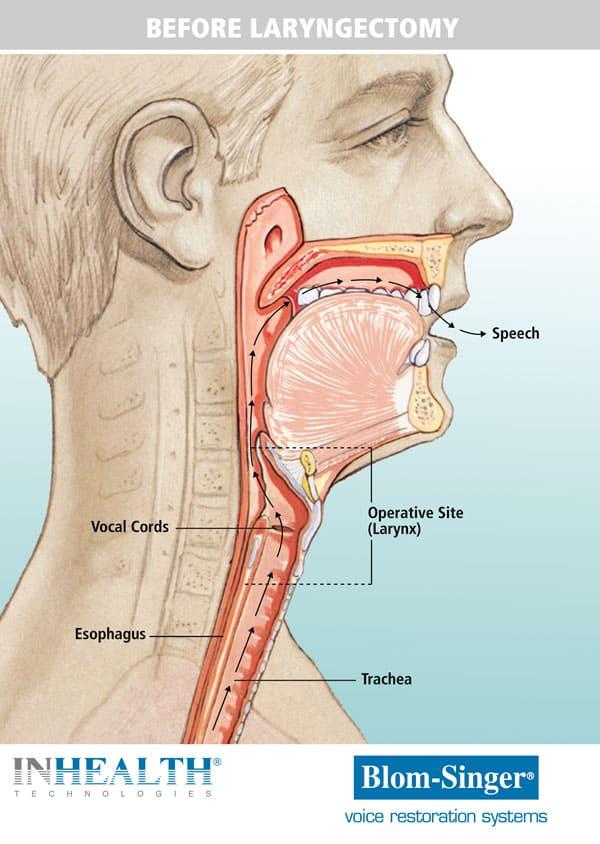 Anatomy before a laryngectomy versus after
