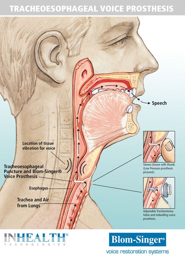 Tracheoesophageal voice prosthesis