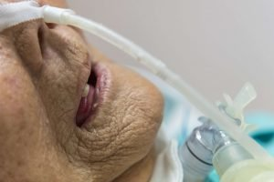 swallowing management for tracheostomy
