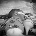 Tracheostomy and palliative care