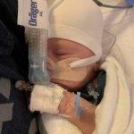 baby with feeding tube
